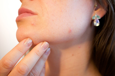 Acne Causes And Treatments Coming Soon Image