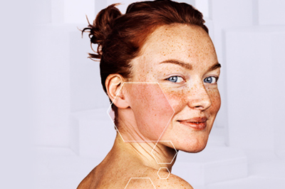 Rosacea Causes And Treatments Image